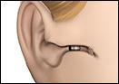 Free hearing aid deep canal