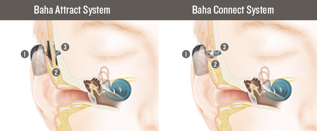 En-Baha-5-How-it-works-627x259